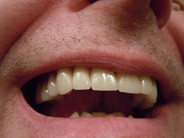 Human Canine Teeth are Designed to Eat Meat?