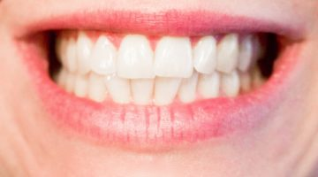 Orthodontists Reveal Which Foods Keep Your Teeth Clean